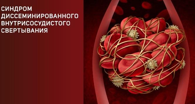 Синдром диссеминированного внутрисосудистого свертывания крови. Синдром ДВС.